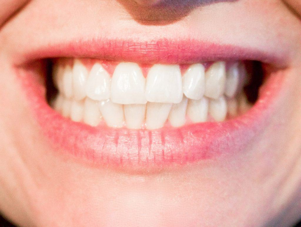 whiter teeth with activated charcoal